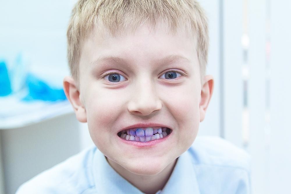 indikatsiya zubnogo naleta
