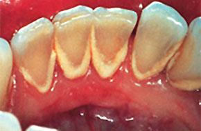zubnye otlozheniya