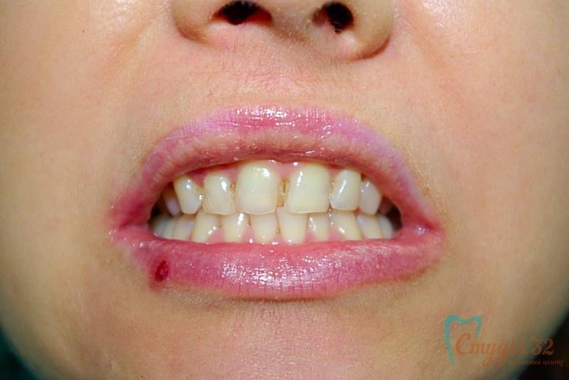 Перед реставрацией зубов