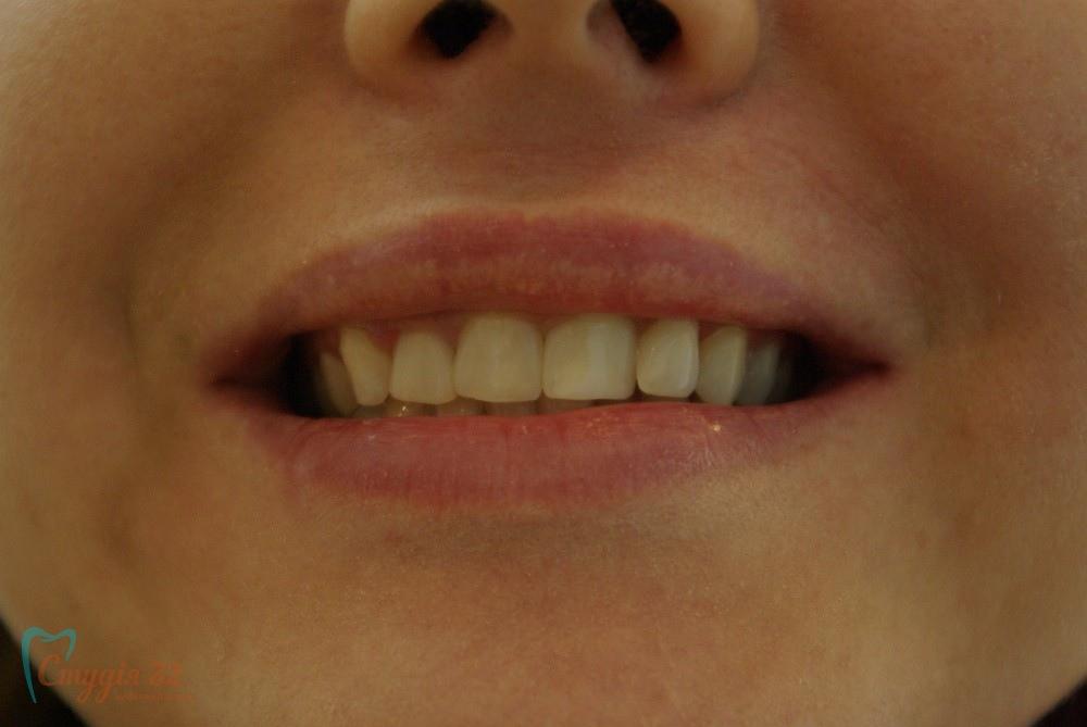 restavratsiya zubov