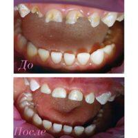 востановление молочных зубов