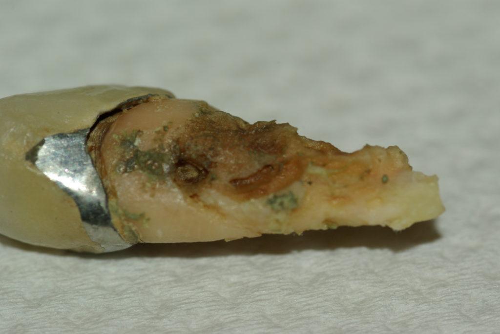 Зубной периодонтит