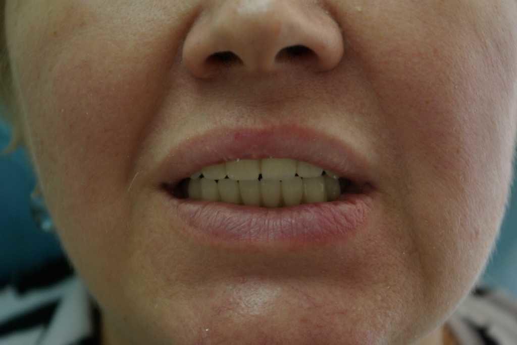 Вылеченые зубы Студия 32