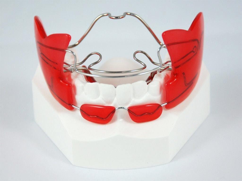 Съемные ортодонтические конструкции