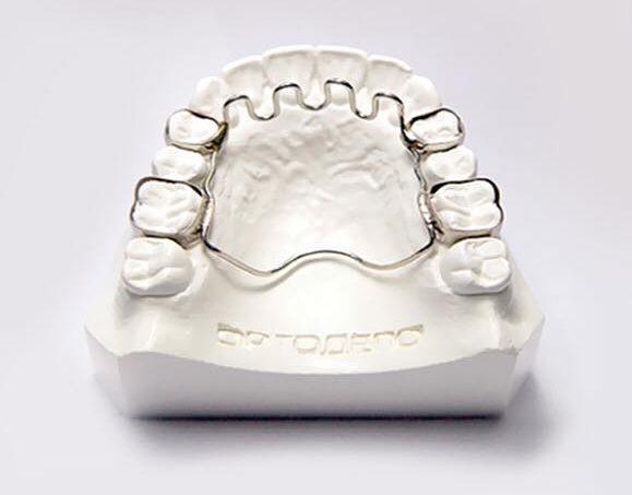 Выравнивание зубов без брекетов