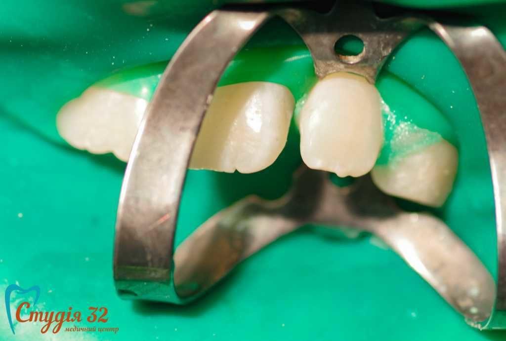 Лечение зубов без сверла ICON