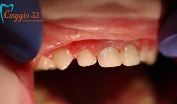 Тремы на молочных зубах