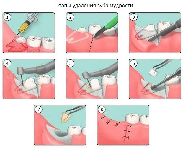 Этапы удаления зуба мудрости