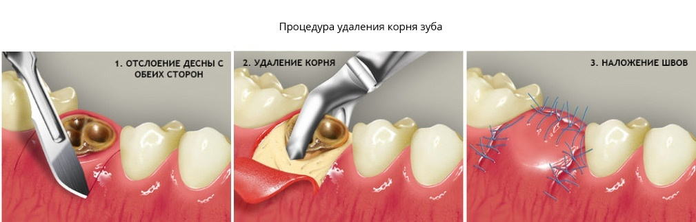 Процедура удаления корня зуба