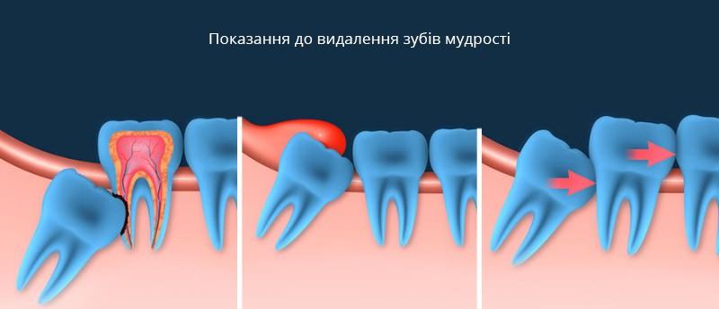 Видалення зуба мудрості