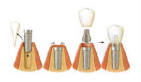 одноэтапная имплантация зуба