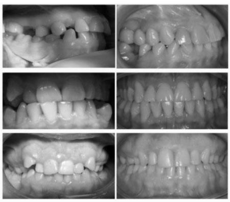 Выравнивание зубов