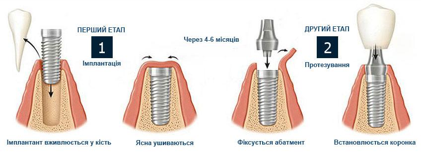 Двоетапна імплантація