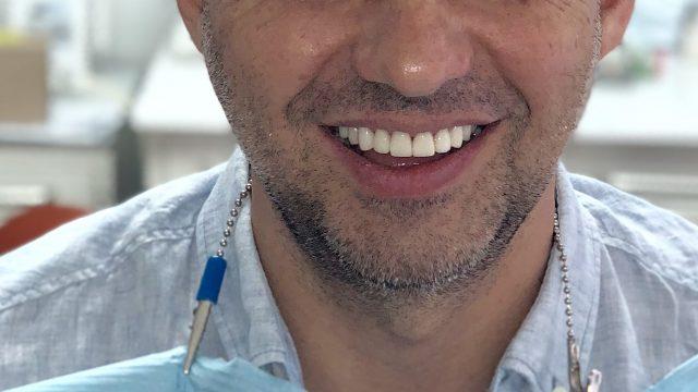 Форма та колір зубів: все можна виправити!