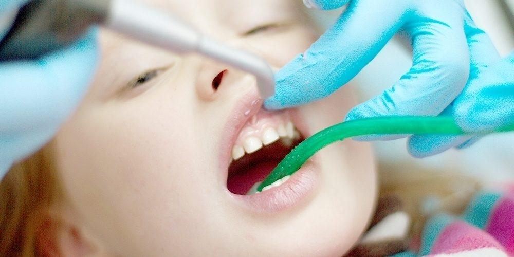 Лікування пульпіту у дітей