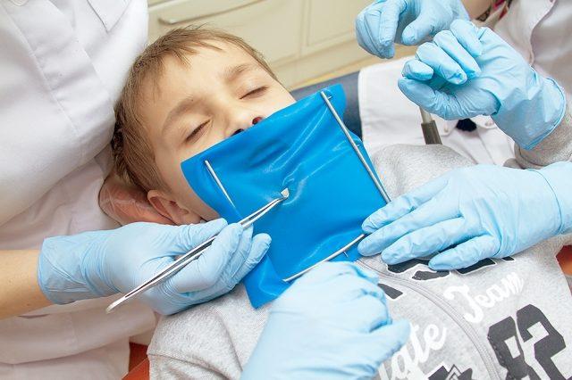 Установка кофердама, лечение зубов