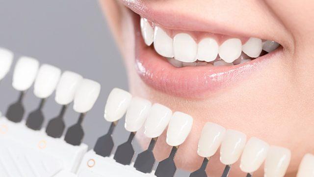 Вініри, види і можливості художньої реставрації зубів