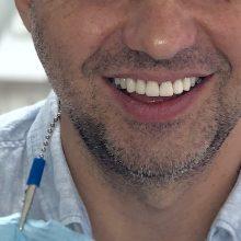 Форма и цвет зубов: все поправимо!