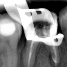 Ультрасовременное лечение каналов зуба