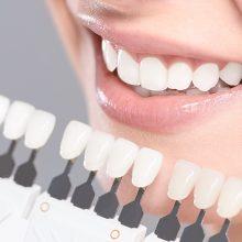 Виниры, виды и возможности художественной реставрации зубов